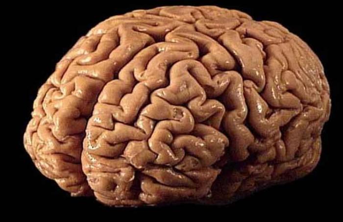 Brain Transplant Jokes Times